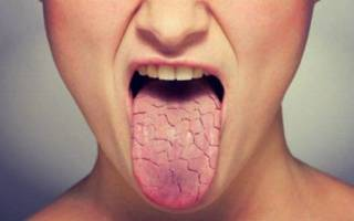 Сухость во рту при Болезние