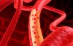 Диабетическая ангиопатия сосудов нижних конечностей лечение