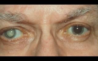 Потеря зрения при сахарном Болезние