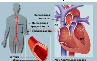 Уплотнение аорты сердца симптомы
