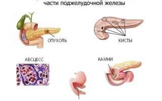 Увеличение печени и поджелудочной железы